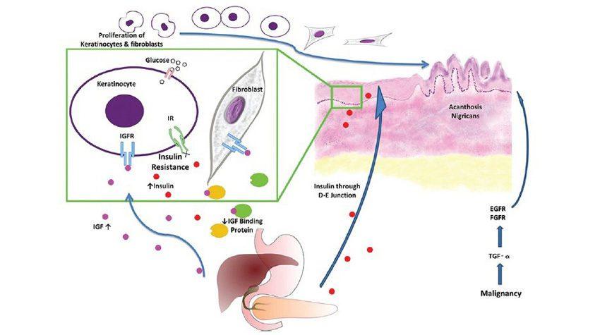 Acanthosis Nigricans | What Causes Dark Armpit Skin | Natural Deodorant Myth | Awake Organics | UK Beauty Brand Brand | diagram image
